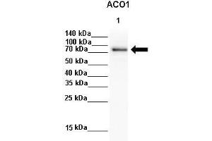 Image no. 5 for anti-Aconitase 1, Soluble (ACO1) (N-Term) antibody (ABIN2778793)