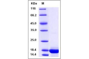 image for Chemokine (C-C Motif) Ligand 21 (CCL21) (AA 1-131) protein (ABIN2009910)