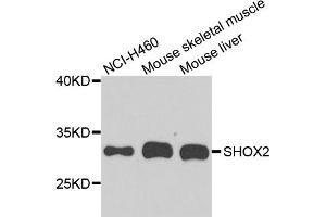 Image no. 1 for anti-Short Stature Homeobox 2 (SHOX2) antibody (ABIN6571664)