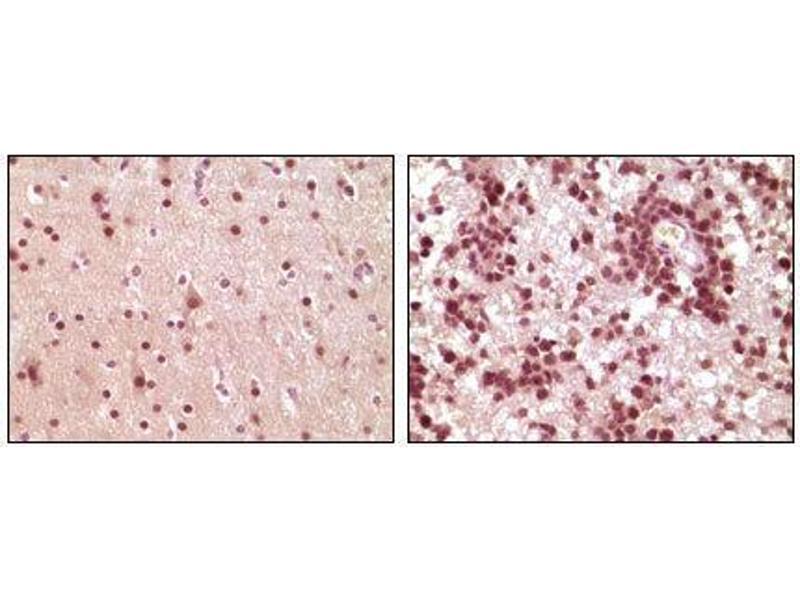 Immunohistochemistry (IHC) image for anti-ELK1, Member of ETS Oncogene Family (ELK1) antibody (ABIN969095)