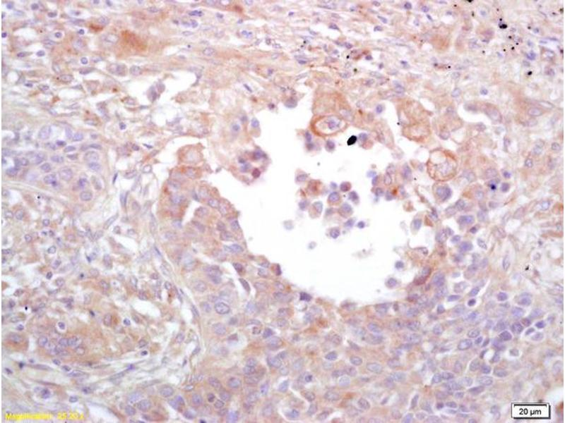 Immunohistochemistry (IHC) image for anti-Mitogen-Activated Protein Kinase 1/3 (MAPK1/3) (AA 320-356) antibody (ABIN748373)