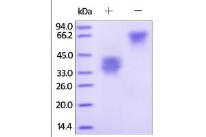 Image no. 1 for Tumor Necrosis Factor Receptor Superfamily, Member 12A (TNFRSF12A) (AA 28-79) protein (Fc Tag) (ABIN2181851)