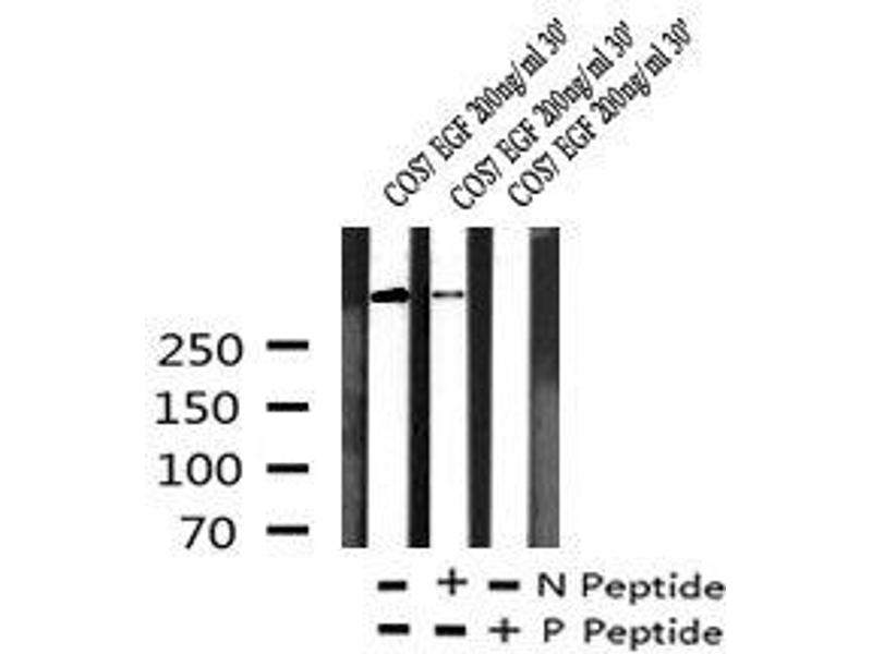 Image no. 2 for anti-RNA Polymerase II CTD (pTyr145) antibody (ABIN6269959)