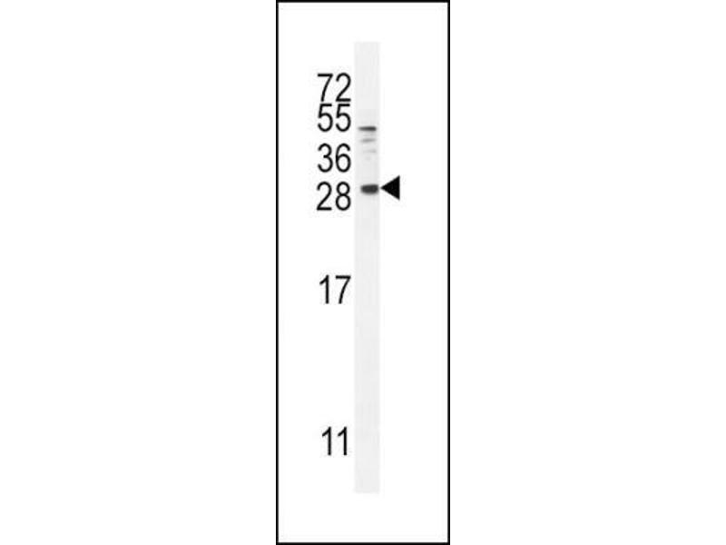 Western Blotting (WB) image for anti-Betacellulin (BTC) (N-Term) antibody (ABIN4284565)