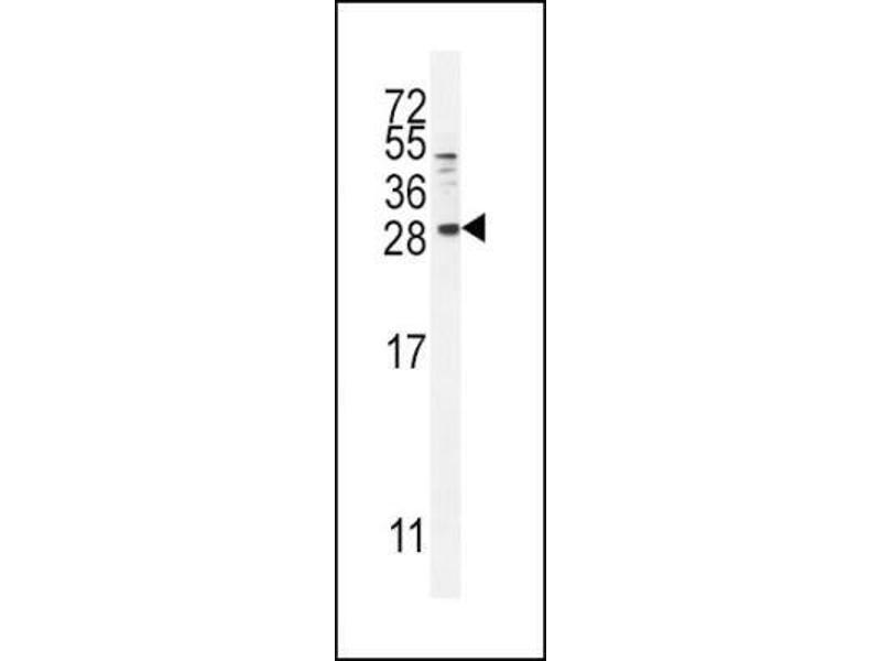 Western Blotting (WB) image for anti-Betacellulin (BTC) (N-Term) antibody (ABIN4284565)