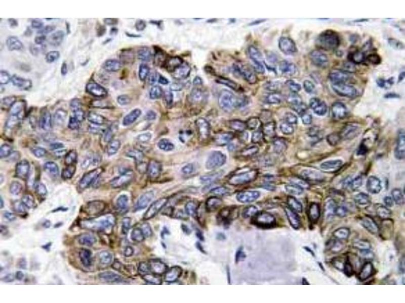 Immunohistochemistry (Paraffin-embedded Sections) (IHC (p)) image for anti-Chemokine (C-C Motif) Ligand 5 (CCL5) antibody (ABIN498516)