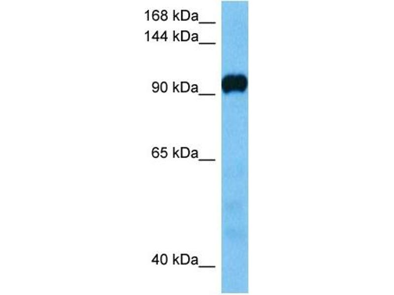 Western Blotting (WB) image for anti-ATPase, Ca++ Transporting, Cardiac Muscle, Slow Twitch 2 (ATP2A2) (C-Term) antibody (ABIN2782136)