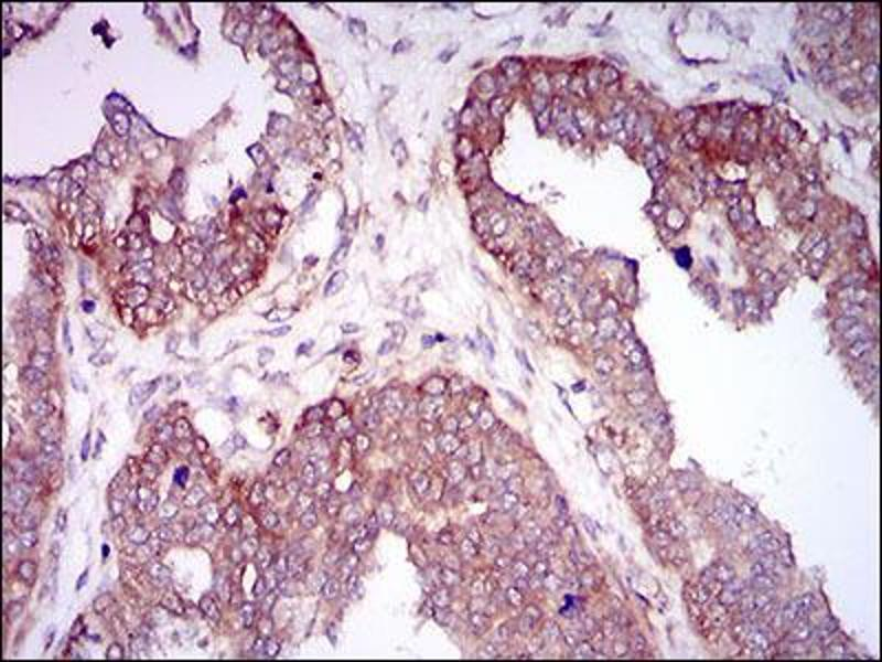 Immunohistochemistry (IHC) image for anti-Hyaluronan Synthase 2 (HAS2) (AA 67-170) antibody (ABIN1098124)