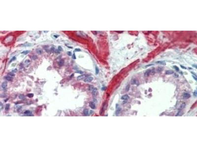 Immunohistochemistry (Paraffin-embedded Sections) (IHC (p)) image for anti-Insulin-Like Growth Factor Binding Protein 4 (IGFBP4) antibody (ABIN4894624)