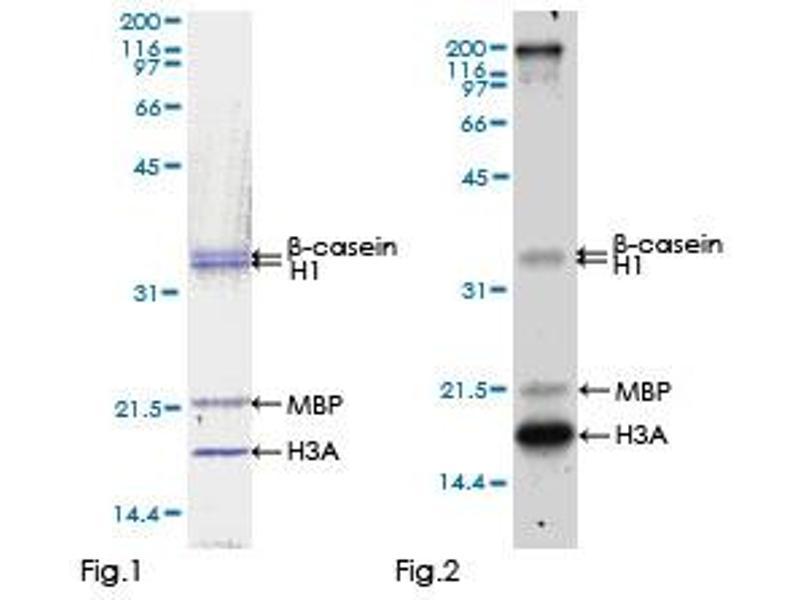 Kinase Activity Assay (KAA) image for Eukaryotic Elongation Factor-2 Kinase (EEF2K) (AA 1-725), (full length) protein (GST tag) (ABIN1352365)