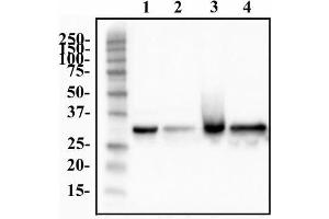Western Blotting (WB) image for anti-Heterogeneous Nuclear Ribonucleoprotein A1 (HNRNPA1) antibody (ABIN152096)