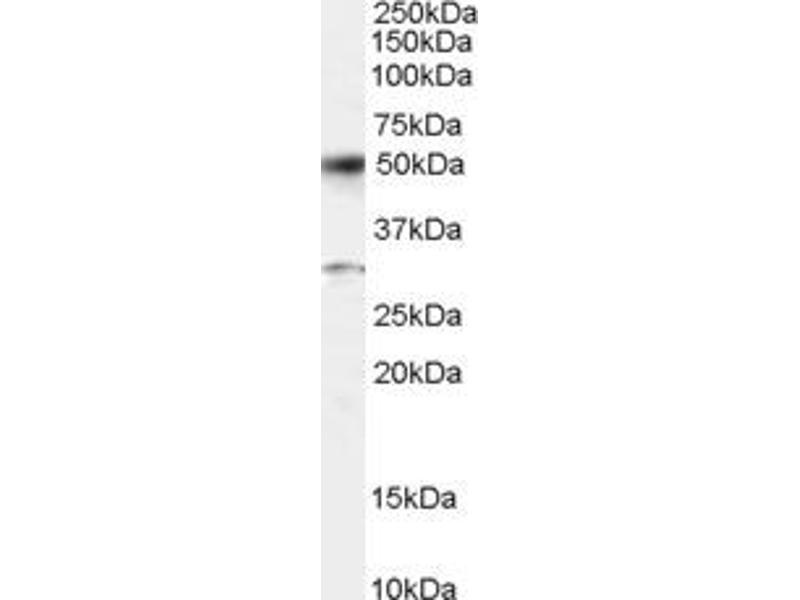 Western Blotting (WB) image for anti-Activating Transcription Factor 2 (ATF2) (C-Term) antibody (ABIN257655)