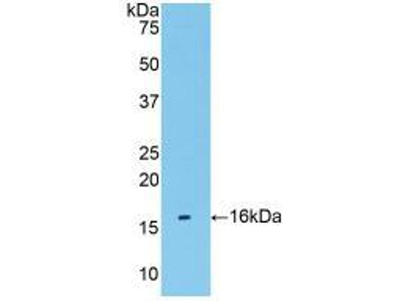 Image no. 2 for anti-Transmembrane Protein 27 (TMEM27) (AA 17-137) antibody (ABIN2903651)