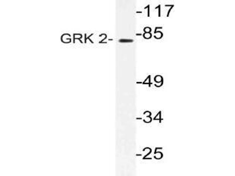 Western Blotting (WB) image for anti-Adrenergic, Beta, Receptor Kinase 1 (ADRBK1) antibody (ABIN499029)
