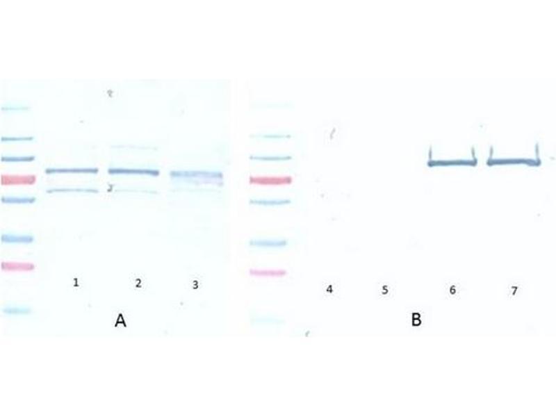 Western Blotting (WB) image for anti-AKT antibody (V-Akt Murine Thymoma Viral Oncogene Homolog 1) (Ser473) (ABIN400784)