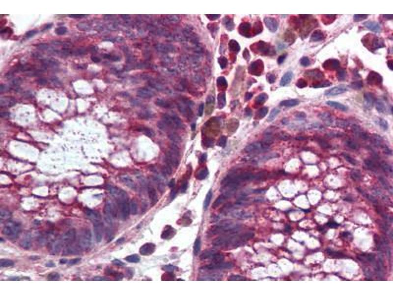 Immunohistochemistry (Paraffin-embedded Sections) (IHC (p)) image for anti-NADPH Oxidase 1 (NOX1) (C-Term) antibody (ABIN297329)