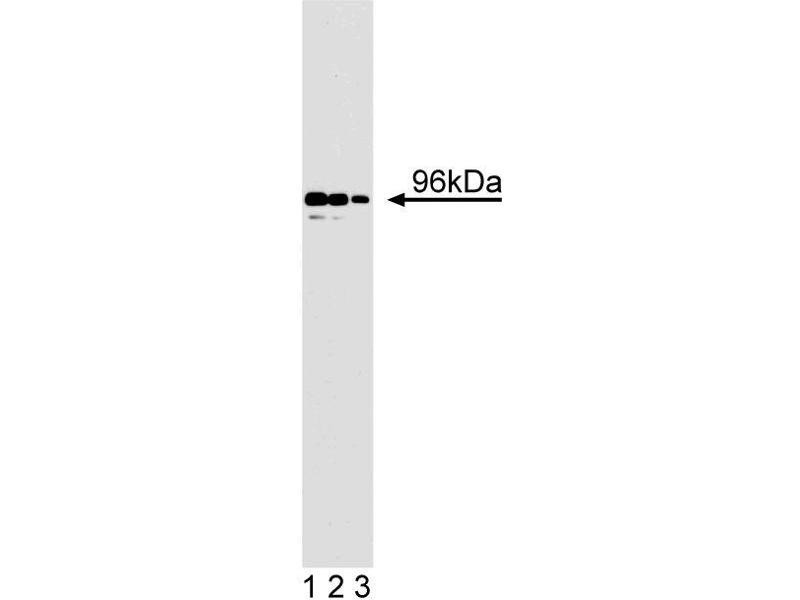 Western Blotting (WB) image for anti-DAB2 antibody (Disabled 2, Mitogen-Responsive Phosphoprotein) (AA 31-45) (ABIN967990)