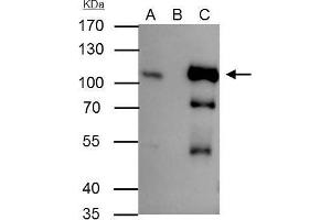Image no. 3 for anti-Small Nuclear Ribonucleoprotein Polypeptide E (SNRPE) (Internal Region) antibody (ABIN2854894)
