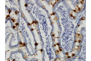 Image no. 2 for anti-Trefoil Factor 3 (Intestinal) (TFF3) (AA 15-73) antibody (ABIN563166)