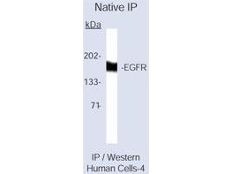 Western Blotting (WB) image for anti-EGFR antibody (Epidermal Growth Factor Receptor) (ABIN258577)