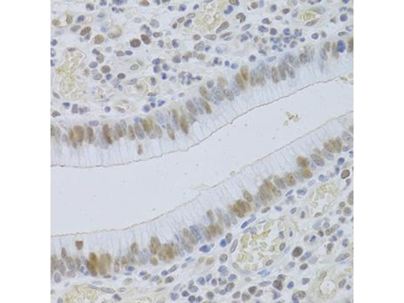 Immunohistochemistry (IHC) image for anti-Jumonji Domain Containing 6 (JMJD6) antibody (ABIN2563504)