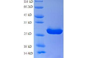 Image no. 1 for Solute Carrier Family 26, Member 3 (SLC26A3) (AA 28-254) protein (His tag) (ABIN5713114)