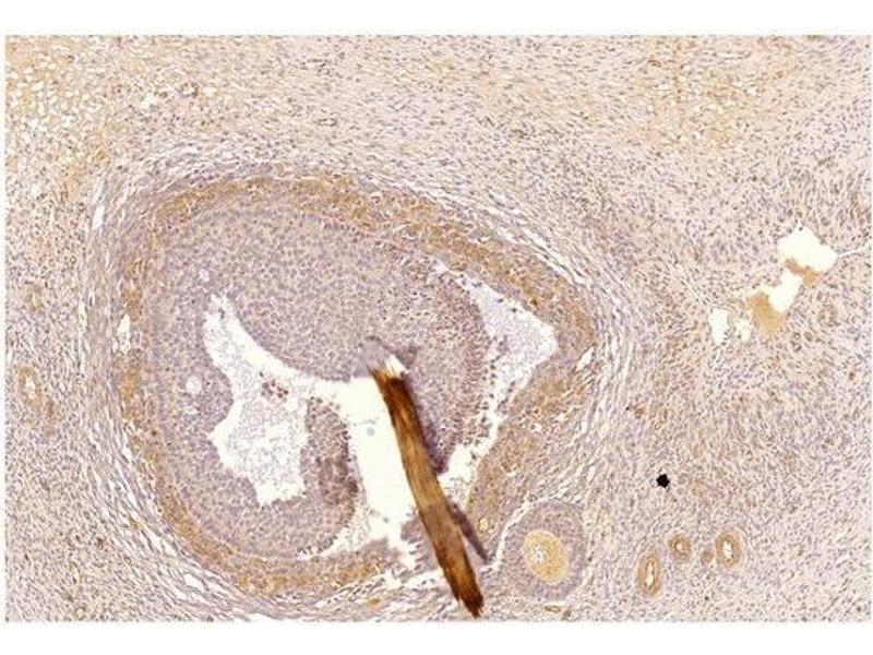 Immunohistochemistry (IHC) image for anti-phosphodiesterase 2A, CGMP-Stimulated (PDE2A) antibody (ABIN1040308)