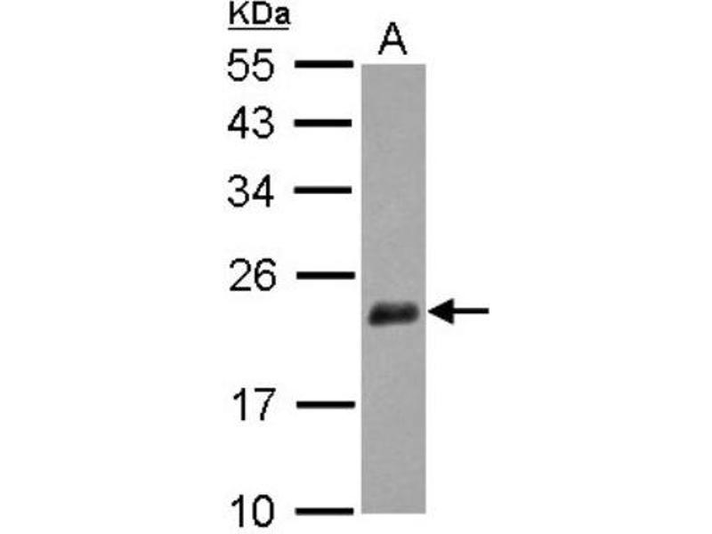 Western Blotting (WB) image for anti-Nudix (Nucleoside Diphosphate Linked Moiety X)-Type Motif 3 (NUDT3) (Center) antibody (ABIN4341122)