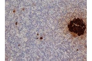 Immunohistochemistry (Formalin-fixed Paraffin-embedded Sections) (IHC (fp)) image for anti-Insulin antibody (INS) (ABIN2490168)