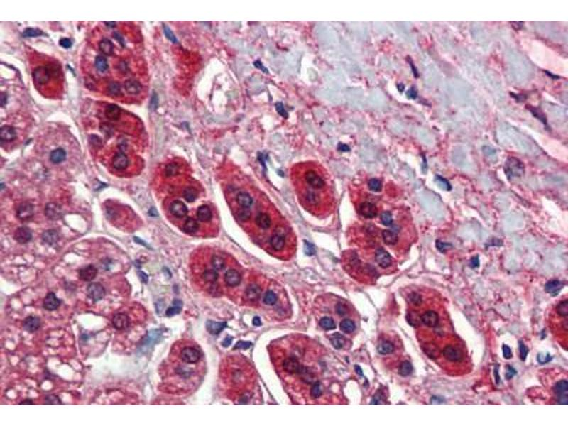 Immunohistochemistry (Paraffin-embedded Sections) (IHC (p)) image for anti-Transcription Factor 21 (TCF21) (AA 42-91) antibody (ABIN462190)