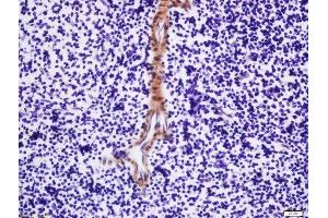 Immunohistochemistry (Paraffin-embedded Sections) (IHC (p)) image for anti-MPL antibody (Myeloproliferative Leukemia Virus Oncogene) (AA 410-445) (ABIN2177731)