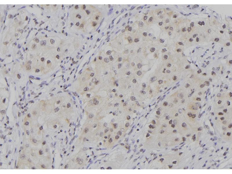 Image no. 3 for anti-Baculoviral IAP Repeat-Containing 5 (BIRC5) (pThr48) antibody (ABIN6269645)