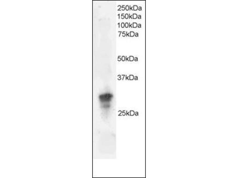 Western Blotting (WB) image for anti-GRB2 antibody (Growth Factor Receptor-Bound Protein 2) (C-Term) (ABIN615406)