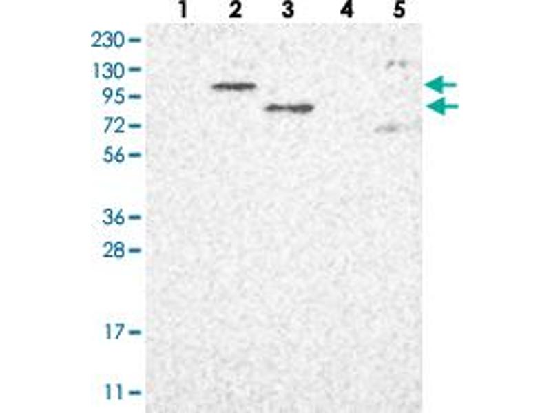 Western Blotting (WB) image for anti-Poly (ADP-Ribose) Polymerase Family, Member 10 (PARP10) antibody (ABIN5585248)