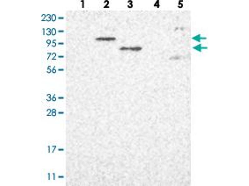 Western Blotting (WB) image for anti-Poly (ADP-Ribose) Polymerase Family, Member 10 (PARP10) antibody (ABIN5585248)