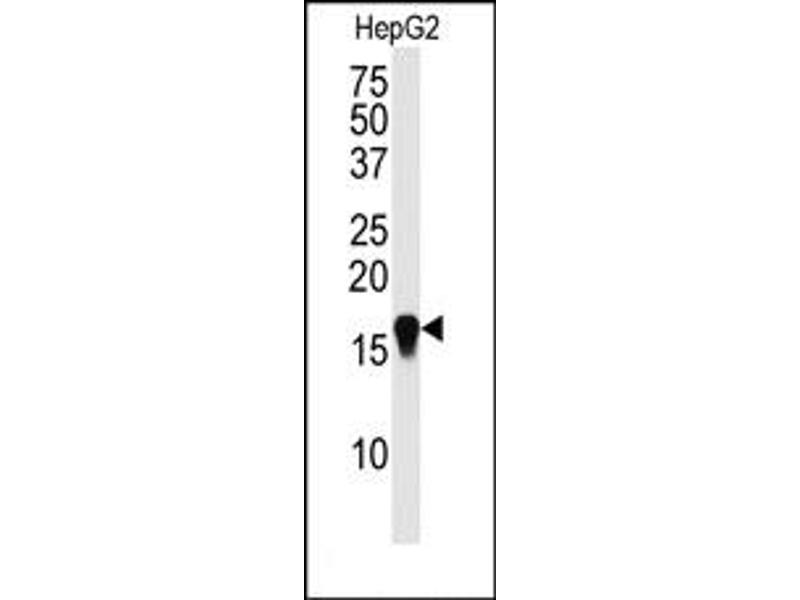 Image no. 1 for anti-SMT3 Suppressor of Mif Two 3 Homolog 4 (S. Cerevisiae) (SUMO4) (Wild Type) antibody (ABIN356786)