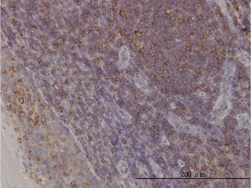 Immunostaining (ISt) image for anti-ACTR3 antibody (ARP3 Actin-Related Protein 3 Homolog (Yeast)) (AA 1-418) (ABIN564363)