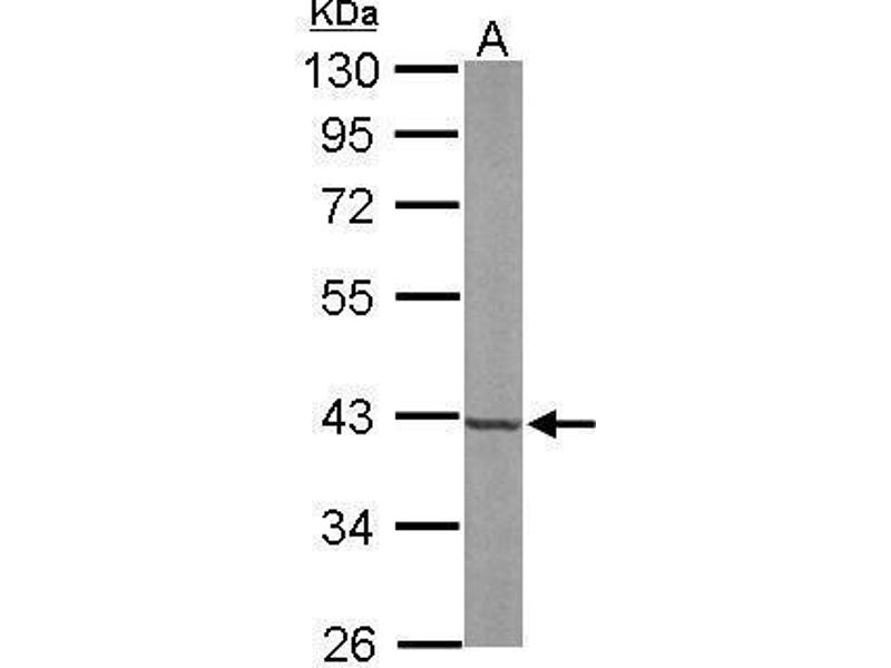 Western Blotting (WB) image for anti-Farnesyl Diphosphate Synthase (FDPS) (Center) antibody (ABIN2856081)