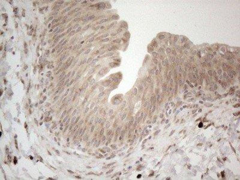 Immunohistochemistry (IHC) image for anti-RNA Binding Motif, Single Stranded Interacting Protein 1 (RBMS1) antibody (ABIN4349648)