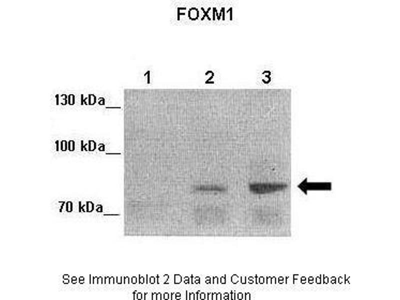 Western Blotting (WB) image for anti-Forkhead Box M1 (FOXM1) (Middle Region) antibody (ABIN2781166)