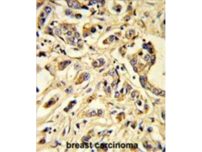 Immunohistochemistry (Paraffin-embedded Sections) (IHC (p)) image for anti-Fms-Related tyrosine Kinase 1 (Vascular Endothelial Growth Factor/vascular Permeability Factor Receptor) (FLT1) antibody (ABIN955511)