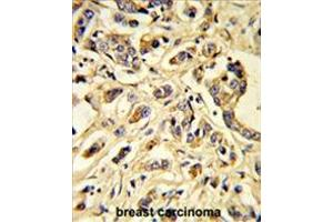 Immunohistochemistry (Paraffin-embedded Sections) (IHC (p)) image for anti-FLT1 antibody (Fms-Related tyrosine Kinase 1 (Vascular Endothelial Growth Factor/vascular Permeability Factor Receptor)) (ABIN955511)