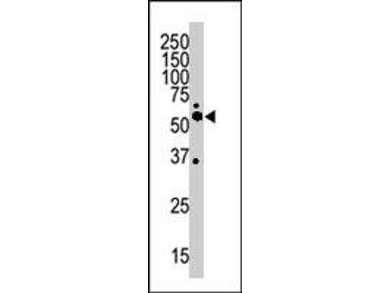 Western Blotting (WB) image for anti-Calcium/calmodulin-Dependent Protein Kinase II alpha (CAMK2A) antibody (ABIN543732)