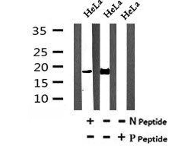 Image no. 2 for anti-Programmed Cell Death 5 (PDCD5) (pSer119) antibody (ABIN6269621)
