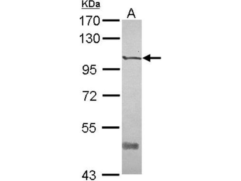Western Blotting (WB) image for anti-PTK7 Protein tyrosine Kinase 7 (PTK7) (N-Term) antibody (ABIN4348550)