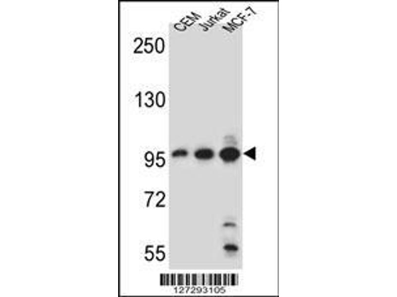 Western Blotting (WB) image for anti-Aftiphilin (AFTPH) (AA 844-871), (C-Term) antibody (ABIN651958)