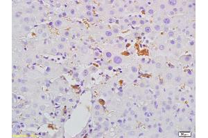 Immunohistochemistry (IHC) image for anti-MBL2 antibody (Mannose-Binding Lectin (Protein C) 2, Soluble) (AA 20-70) (ABIN731663)