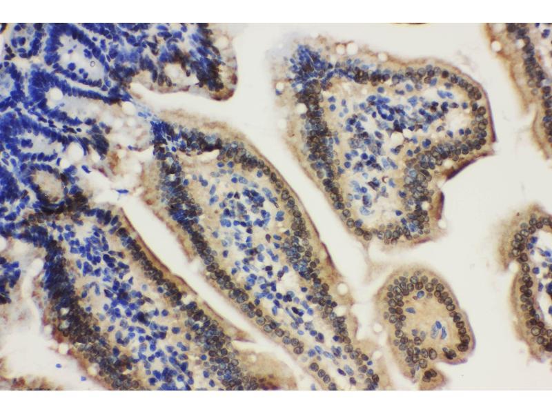 Immunohistochemistry (IHC) image for anti-Lamin A/C (LMNA) (AA 455-469), (C-Term) antibody (ABIN3043695)