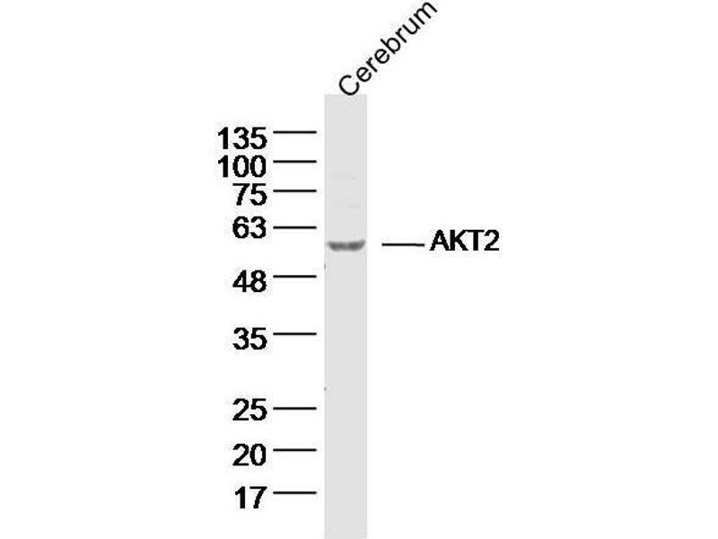 Western Blotting (WB) image for anti-V-Akt Murine Thymoma Viral Oncogene Homolog 2 (AKT2) antibody (ABIN677078)