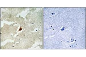 Immunohistochemistry (IHC) image for anti-Mitogen-Activated Protein Kinase-Activated Protein Kinase 5 (MAPKAPK5) (AA 171-220) antibody (ABIN1533990)